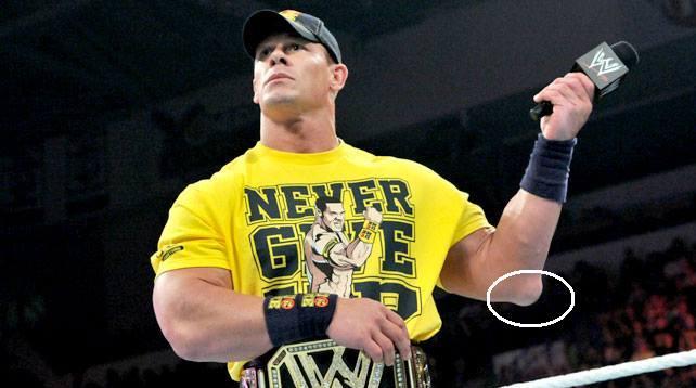 La lesión en el codo de John Cena es más grave de lo que parece