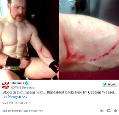Sheamus Sufrió Varias Heridas En WWE RAW